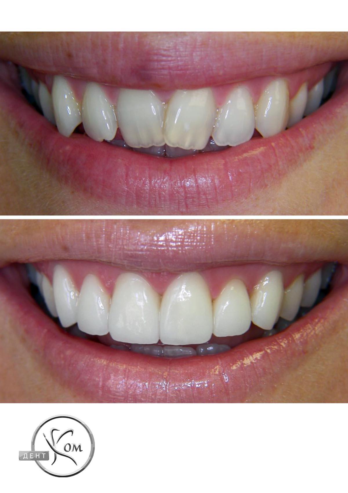 косметична стоматологія Дентком