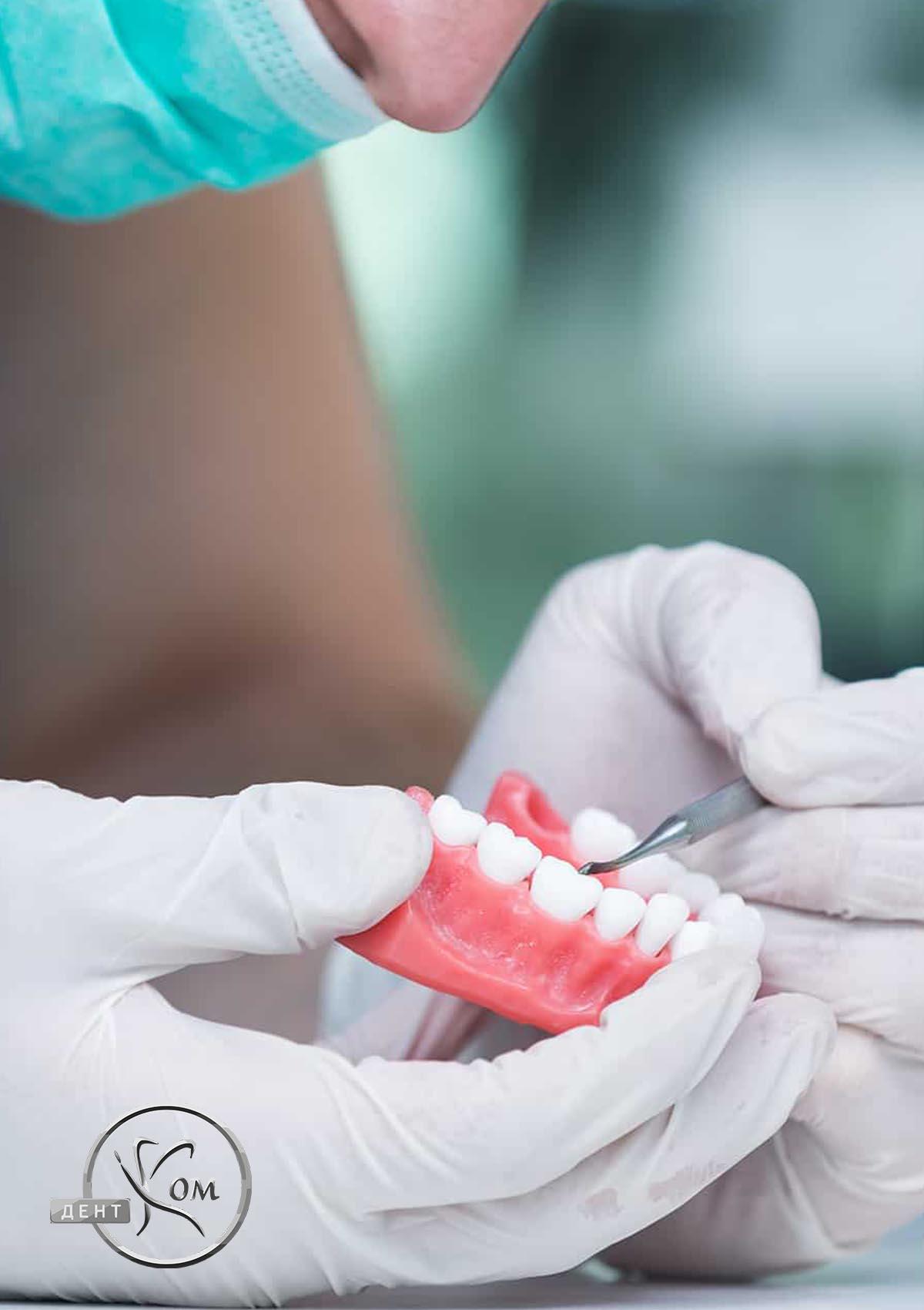 Стоматологічне протезування Дентком